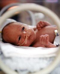 Siete síntomas para detectar complicaciones severas en el recién nacido