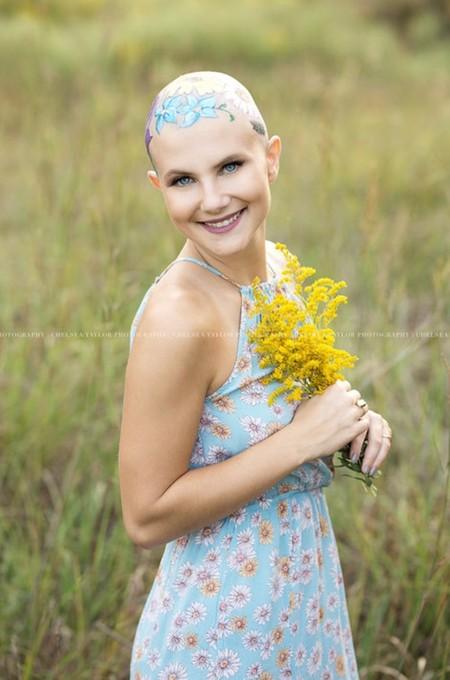 Chica Alopecia 1