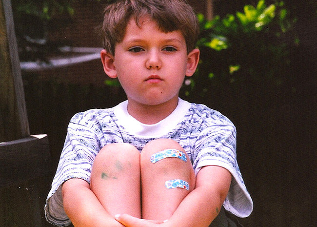 Caídas y golpes en niños 1