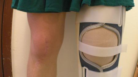 Todo sobre la rodilla (XIII): Luxación de rótula