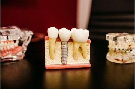 La IA ayuda a identificar a las personas que están en riesgo de pérdida de dientes sin la necesidad de un examen dental
