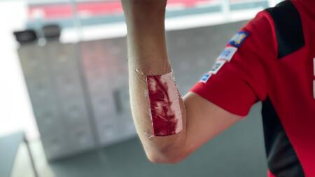 Qué es el síndrome compartimental, la lesión que persigue a los pilotos de MotoGP e hizo perder a Fabio Quartararo  en Jerez