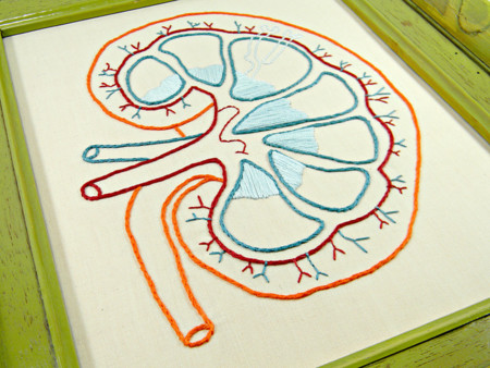 """Acidosis tubular renal, ¿la """"enfermedad de moda""""?"""
