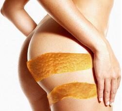 ¿Qué es la piel de naranja?¿Cómo se quita?