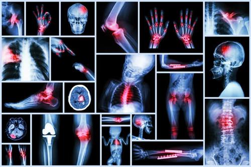 En un lesión ¿optamos por tratamiento conservador o quirúrgico?