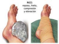 El esguince de tobillo (III): tratamiento