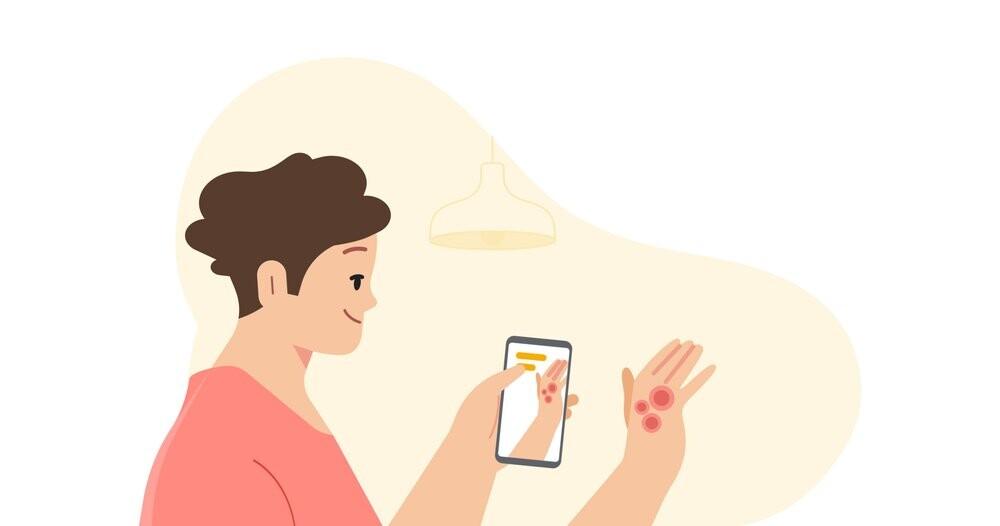 Google podrá localizar enfermedades en la piel a través de la cámara del móvil