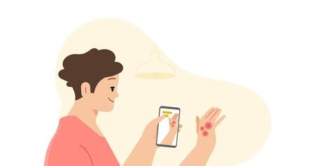 Google podrá detectar enfermedades en la piel a través de la cámara del móvil