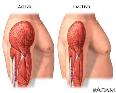 Sarcopenia, las consecuencias de perder masa muscular