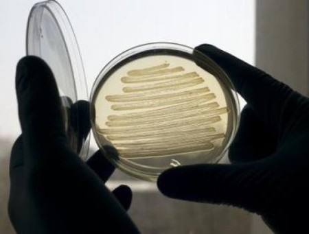 Bacterias para la producción de diésel