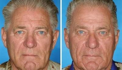 ¿Cuántos años puede envejecer tu cara si fumas? Un estudio con gemelos (fumadores y no fumadores) lo revela