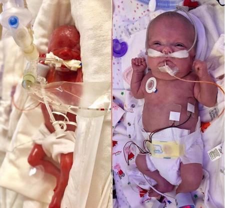 La madre de una bebé prematura comparte el increíble cambio de su hija tres meses después de haber nacido