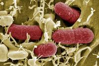¿Qué es la E.Coli y cómo prevenir el contagio en niños?
