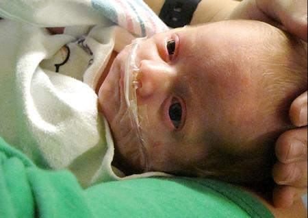 Los bebés prematuros tendrían que empezar a comer a los seis meses de edad corregida