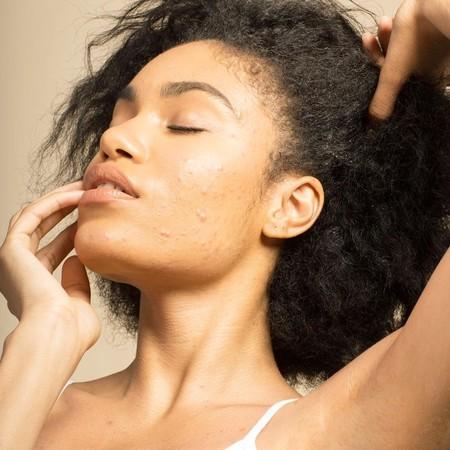 La lucha contra el acné adulto es muy dura. Hablamos con una experta para vencerlo