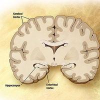 Este análisis de sangre tiene un 94% de precisión para identificar la enfermedad de Alzheimer temprana