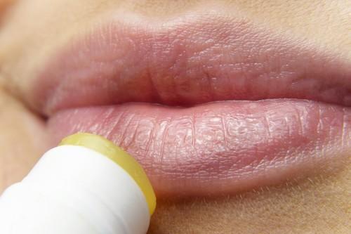 Herpes en verano: cómo prevenirlo, qué puedes (y no puedes) hacer una vez que lo tienes y cómo tratarlo