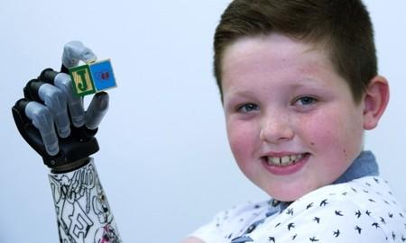 Un niño de nueve años recibe un brazo biónico capaz de agarrar cosas usando gestos