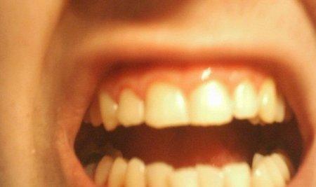 Es preferible ir una vez al año al dentista que lamentar después