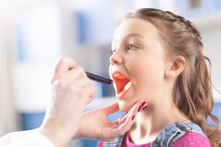 Placas de pus en la garganta sintomas