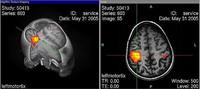 Nueva tecnología para detectar trastornos psiquiátricos