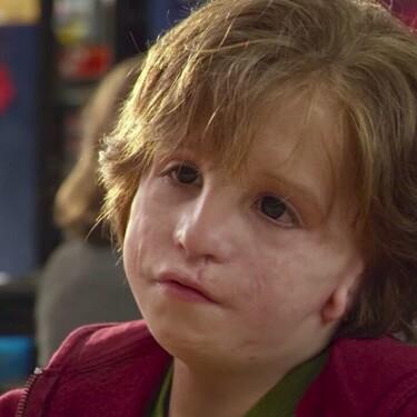 Síndrome de Treacher Collins: todo sobre la enfermedad que hizo visible la película 'Wonder'