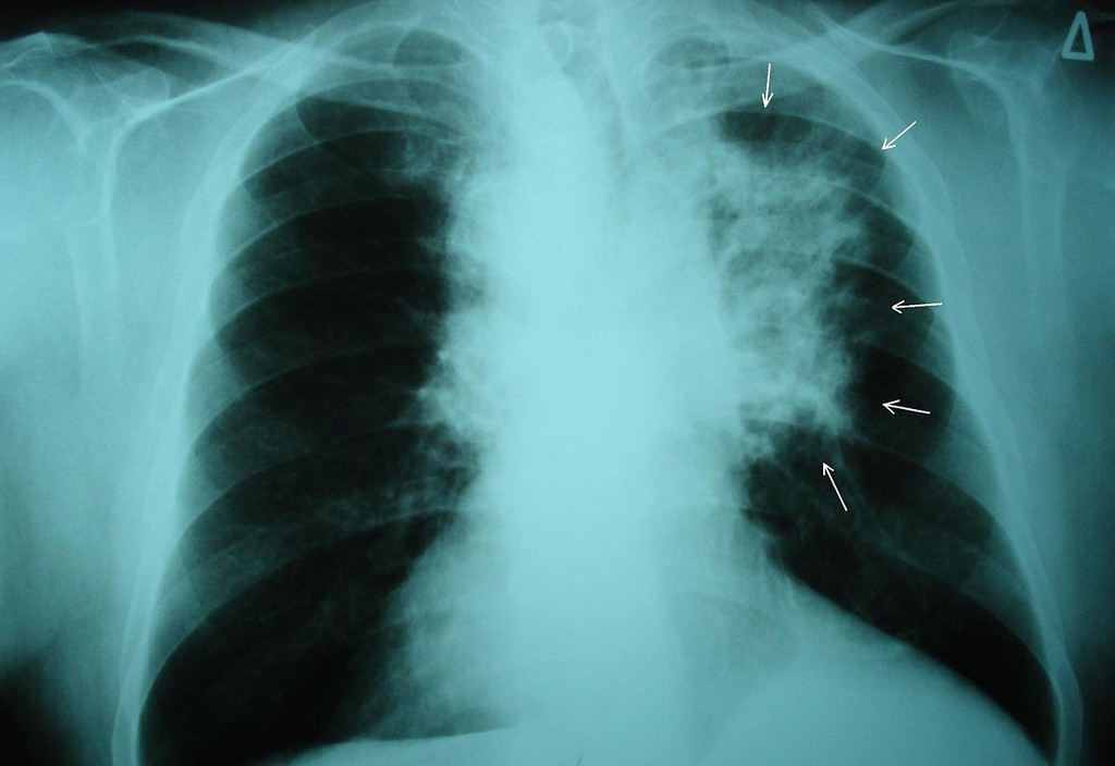 Una IA de Google logra superar a los radiólogos diagnosticando cáncer de pulmón en las primeras etapas de la enfermedad