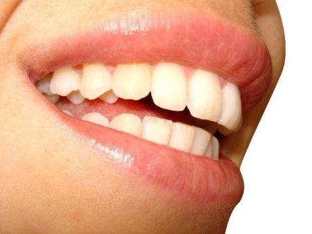 Consejos para limpiar bien nuestros dientes