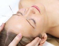 La acupuntura será asignatura optativa de Medicina en la Universidad de Málaga