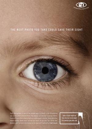 Una simple comprobación con un flash sirve para detectar el retinoblastoma en los niños