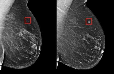 Predecir un cáncer de mama cinco años antes de que aparezca, posible gracias a la inteligencia artificial