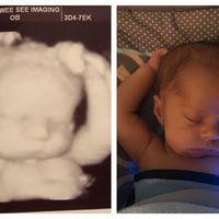 La divertida foto de un bebé durmiendo en la misma posición que lo hacía en el útero materno