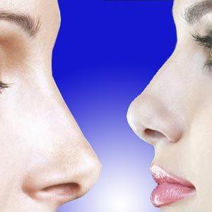 Rinomodelación: cambia la estética de tu nariz sin cirugía