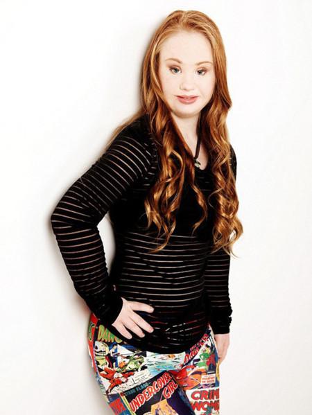 """El síndrome de Down es un """"regalo"""" para esta modelo que puede cambiar la belleza. Así es Madeline Stuart"""
