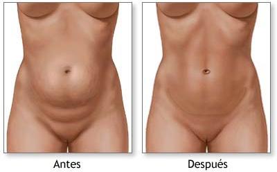 Abdominoplastia: cirugía para el abdomen, ¡luce el ombligo!