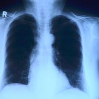 Algunos medicamentos para la presión arterial aumentan el riesgo de cáncer de pulmón