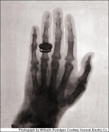 Primera radiografía