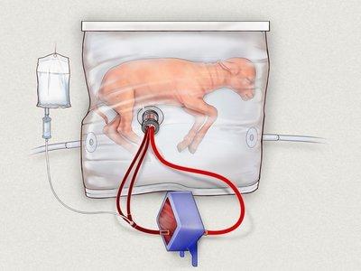 Crean un útero artificial para los grandes prematuros (pero la madre sigue siendo lo primero)