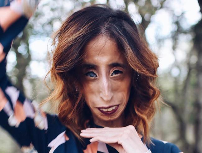 Lizzie Velasquez es una mujer, no un meme. Y se lo ha dejado claro a todos los que practican el bullying.