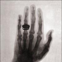 El día en que la gente tenía miedo de verse desnuda a través de los rayos X
