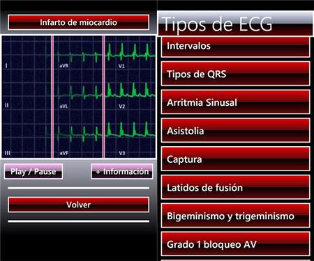 ElectroCG