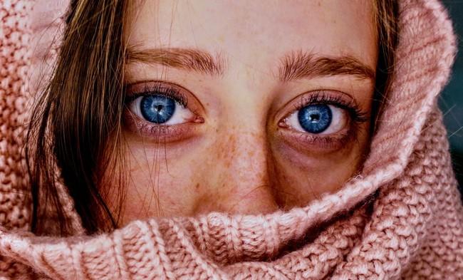 Acne Adulto 1