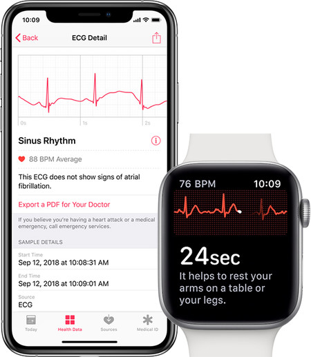 Watchos 5 1 2 Habilitará El Ecg De Los Apple Watch Series 4 Según Un Documento Interno De Apple