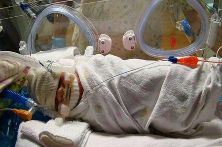 Envolver a los prematuros alivia su dolor