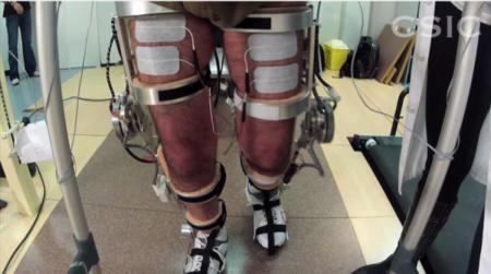 Pacientes Con Lesion Medular Prueban Un Exoesqueleto Neurorrobotico En Toledo Image800