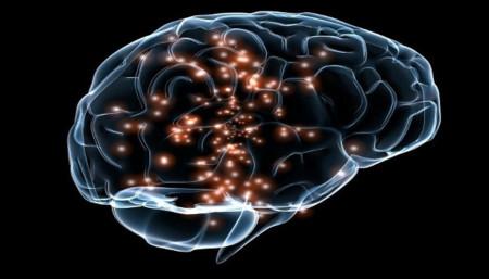 Cerebro Implante Parkinson