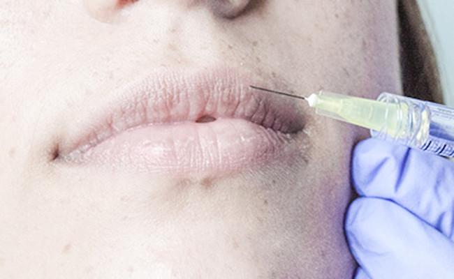 Tratamiento Aumento Labios Clodia