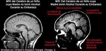 Síndrome alcohólico fetal (SAF)