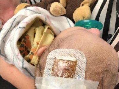 Comparte la historia de su sobrina, enferma de Haemophilus influenzae B, para concienciar de la importancia de vacunar