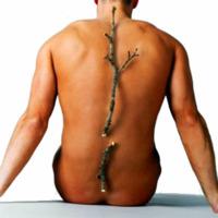 La práctica de ejercicio previene y mejora la osteoporosis
